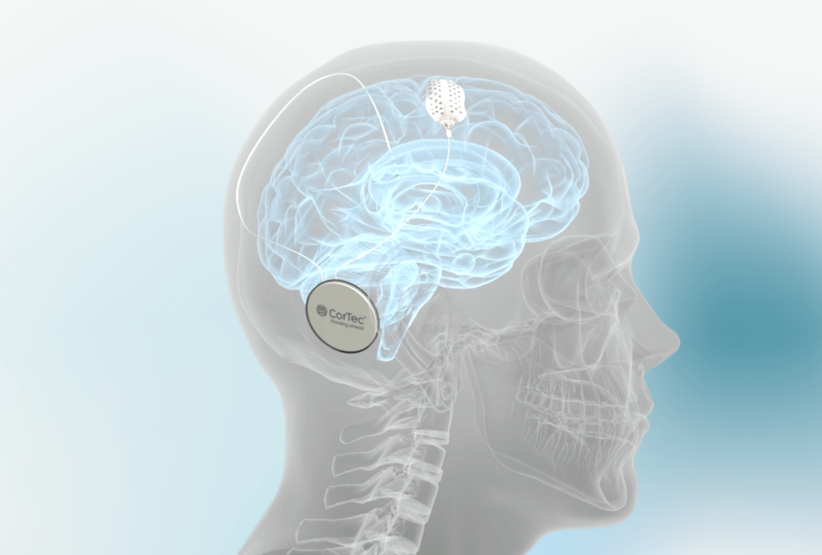 CorTec Brain Interchange, an implantable technology, can measure and stimulate brain activity for long-term use.