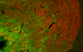 Konio neurons (green) in the lateral geniculate nucleus (C) Carsten Klein / Max Planck Institute for Biological Cybernetics