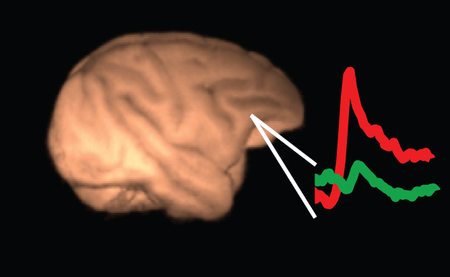 Neurons in the lateral prefrontal cortex represent the content of consciousness. The red trace depicts neural activity (neuronal discharges) in the lateral prefrontal cortex when a stimulus is consciously perceived for 1 second while the green trace depicts neural activity when the same stimulus is suppressed from awareness. Copyright: Max Plank Institute for Biological Cybernetics