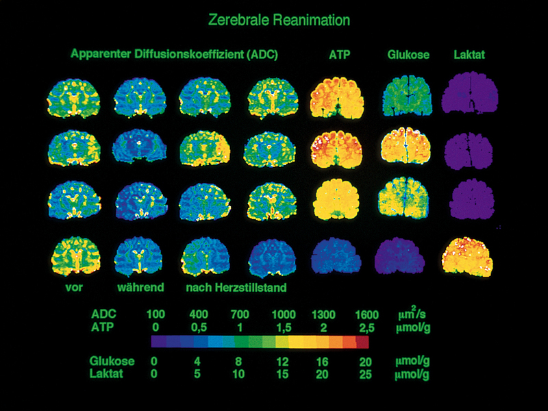 Resuscitation of the brain after a 15-minute cardiac arrest in fMRI: The pictorial representation provides information about the degree of damage of the brain as well as a detailed analysis of the recovery curve. The top three rows are examples of successful and the bottom row for an unsuccessful resuscitation. The comparison with the concentration images of ATP, glucose and lactate shows that the MR images are in fact closely related to the biochemical changes. Based on such studies, the course of cerebral infarction and the success of various therapeutic measures can be documented. Copyright: Max Planck Institute for Metabolism Research