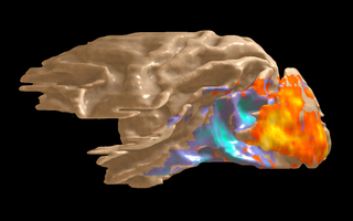 Example of a 3D activation map elicited by electric microstimulation (ES) to LGN, a thalamic nucleus that receives visual information from retina and mono-synaptically projects to the primary visual cortex (V1). FMRI signals from V1 show increased neuronal activity (red and yellow colors) whereas later cortical areas are suppressed (blue color). (Image: Yusuke Murayama / Max Planck Institute for Biological Cybernetics)