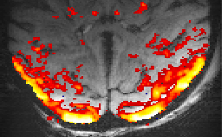 The stimulus used to elicit positive and negative BOLD responses in the visual cortex. Picture: Jozien Goense / Max Planck Institut for Biological Cybernteics Tübingen.