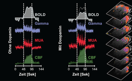 Dopamine alters the so-called BOLD signal in MRI: